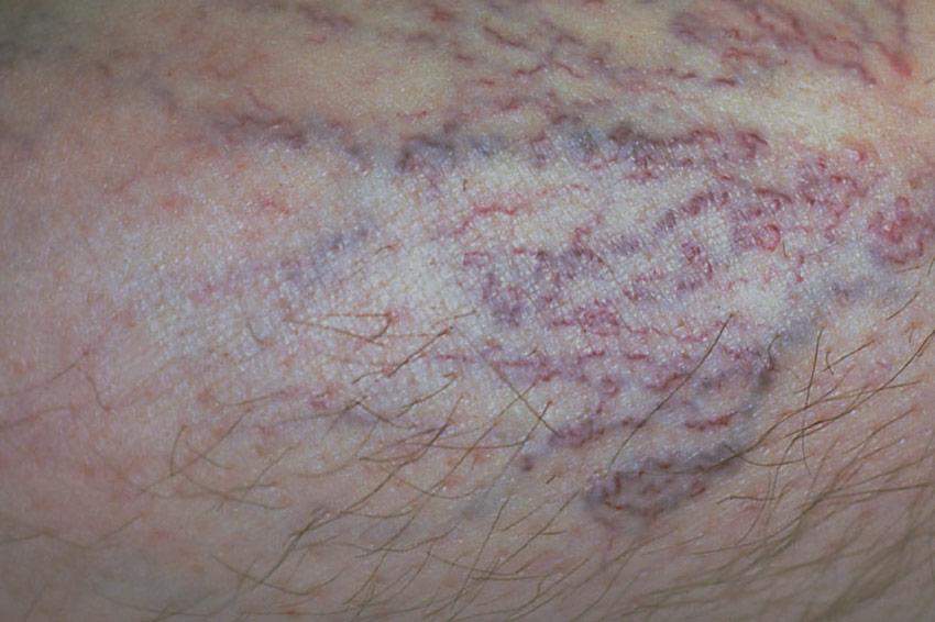 Besenreiser schimmern bläulich, rötlich oder violett durch die Haut