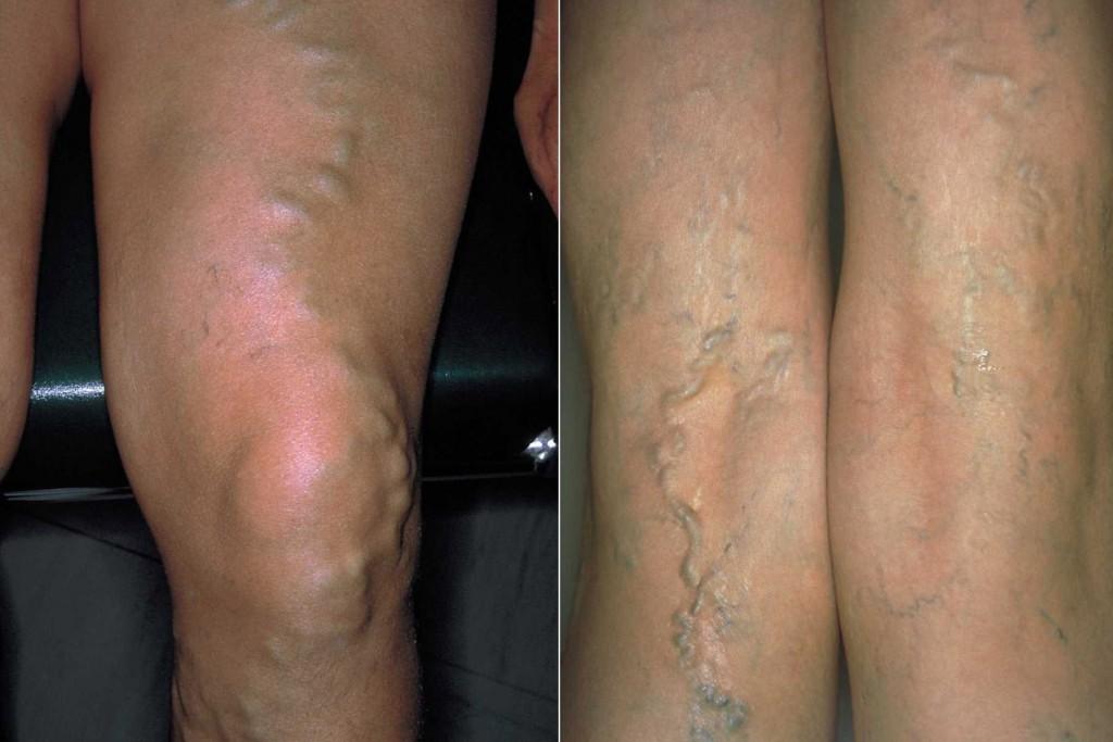 Krampfadern an den Beinen