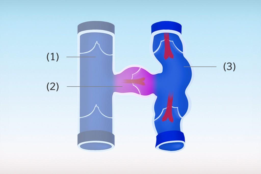 Tiefe Vene (1), Verbindungsvene (2), voll ausgeprägte Krampfader (3)
